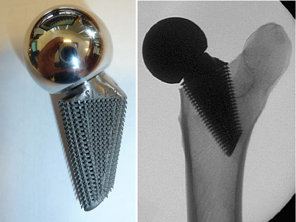 OsteoAnchor architecture applied to a short hip stem design (left); X-ray of device implanted in cadaver femur (right)